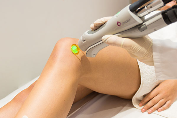 Laser Hair Removal Is It For Everyone Reflect Medispa