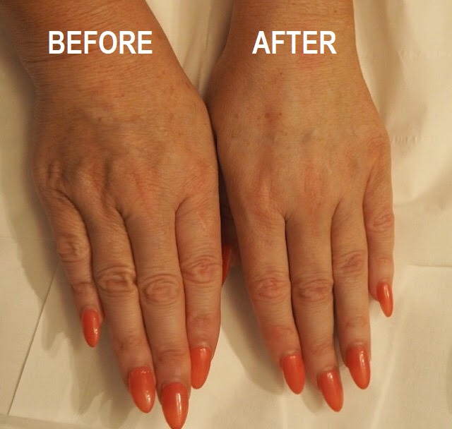 Anti-Ageing Hand Treatment Surrey